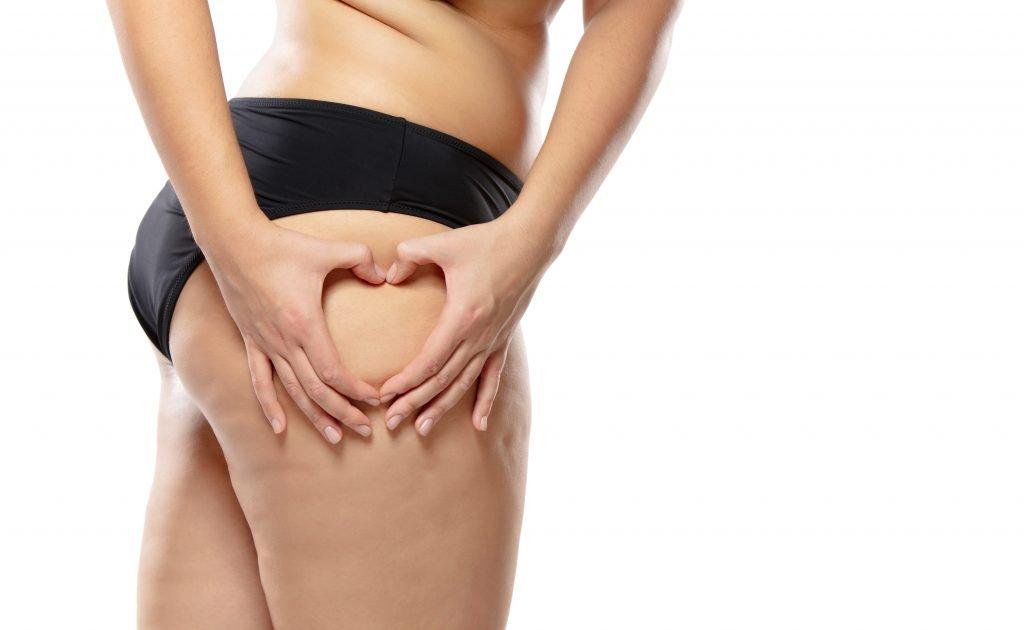 come eliminare la cellulite rimedi